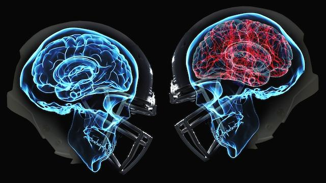 Concussions are a big problem for the NFL